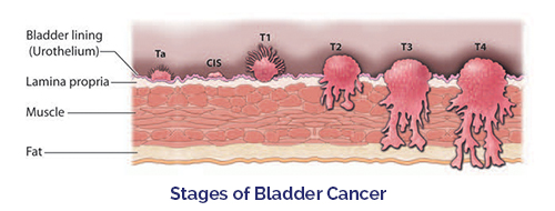 stage of Bladder Cancer