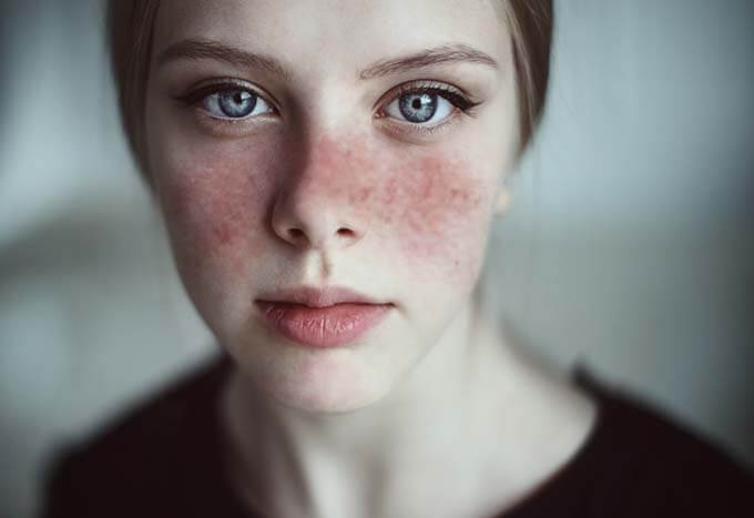 chronic disease lupus