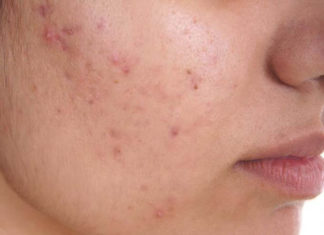 skin diseases causes and treatment